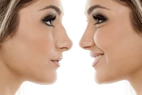 Chirurgie du nez Dr Benzaken
